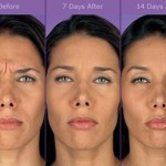 Wrinkle Treatment – dispelling the myths…
