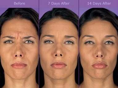 Consultations available for wrinkle treatment